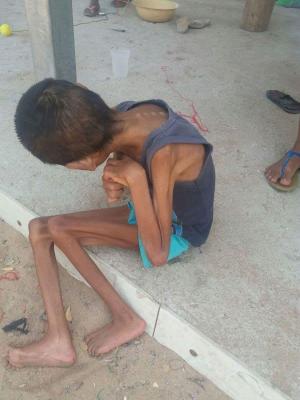 Kid starvingVenezuela